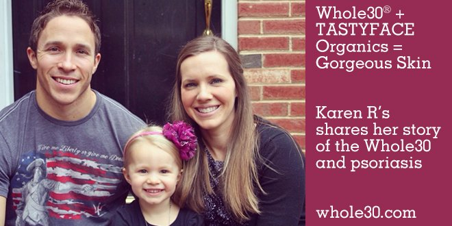 Whole + TastFace Organics| Karen R's share her story of the Whole30 and psoriasis